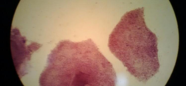 iPS細胞関連株を買う前に参加したい!科学未来館の染色実験に行ってきました